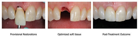 A provisional implant crown was used to optimize the peri-implant soft tissue. The developed emergence profile was subsequently transferred accurately into the final abutment/porcelain crown.
