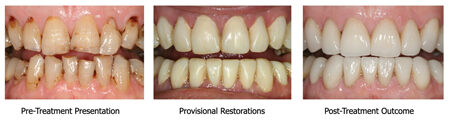 """This patient desired a """"natural"""" improved smile, seeking some minor imperfections that would make the anterior dentition more """"natural"""" looking. Minor incised imperfections were customised in the provisional stage and transferred to the final porcelain restorations."""