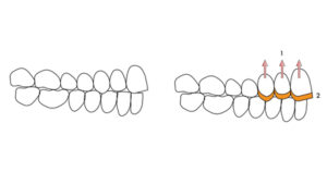 Another option when treating localized anterior dental wear and lack of prosthetic space, is to orthodontically intrude and restore only the maxillary teeth. The posterior dentition will not require any treatment.