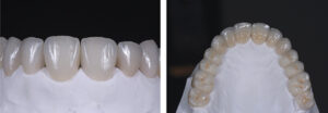 Case of anterior dental wear treated increasing VDO and restoring the whole maxillary arch and the incisal edge of the mandibular anterior teeth.