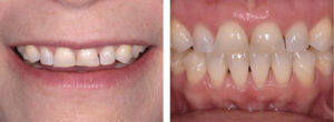 Evident wear of the maxillary anterior teeth. No posterior wear was present.