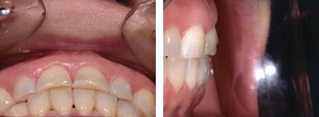 Due to dental wear supra-eruption of the teeth has occurred and no prosthetic space is available in the anterior region.