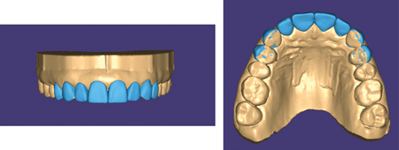 Digital diagnostic wax-up (frontal and occlusal view).