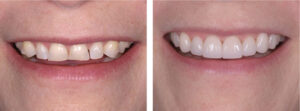 Before and after: patient was very please about the final result.