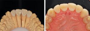 . Palatal feldspathic veneers fabricated and bonded to restore the worn teeth. 2