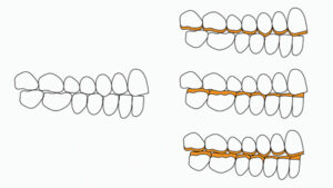 In case of generalized dental wear and lack of prosthetic space, the VDO needs to be increased and one or both arches restored.