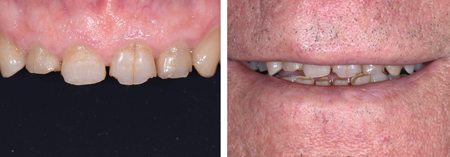 Note the amount of wear on the maxillary anterior teeth that has affected the smile of the patient.