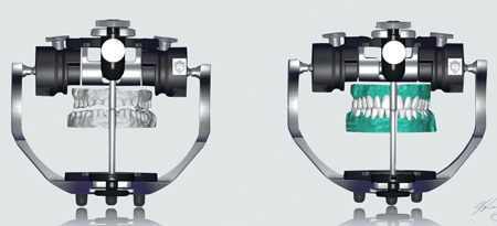"""The digital models were """"mounted"""" on a virtual articulator and a diagnostic wax-up done."""
