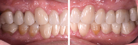 A full mouth reconstruction with all-ceramic crowns was completed, with 2 different materials: zirconia-layered and E.Max crowns.