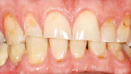 Erosive defects on labial surfaces due to excessive consumption of Coca-Cola.