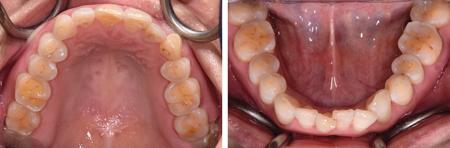 Generalized maxillary and mandibular dental wear out to attrition