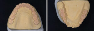 """Diagnostic wax-up done at an increased VDO. 2 clear PVS matrices were fabricated for the """"injection moulding"""" technique."""