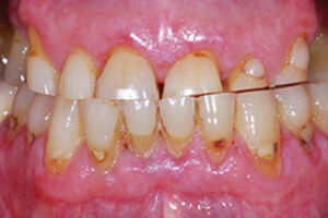 Advanced attrition of teeth. In advanced stages, pulp chamber/root canal system might be visible.