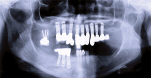 Treatment planning with dental implants – Mandible.