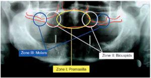 Treatment planning with dental implants – Maxilla.