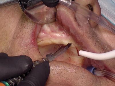 Surgical phase – Maxilla.