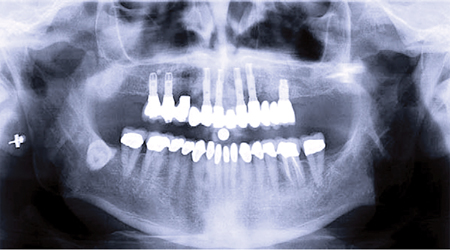 Treatment planning with dental implants – Maxilla.