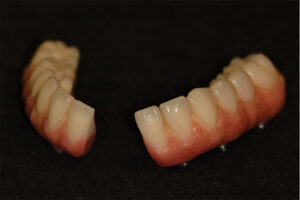 Intraoral photograph, frontal in MI, of the sectioned mandibular prosthesis re-inserted at re-evaluation.