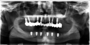 showing maxillary implant prosthesis with mandibular interim complete denture. Panoramic radiograph.
