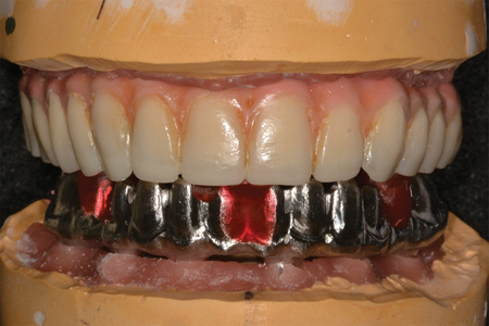Mounted models were verified, and the maxillary implant prosthesis was removed for refurbishment.