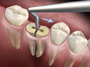 The Hoexter Luxator in the septal area of the mandibular molar. The force is directed toward the mesial.