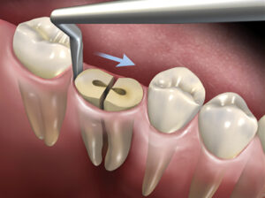 The Hoexter Luxator placed at the distal of the mandibular molar with the force directed in a mesial direction.