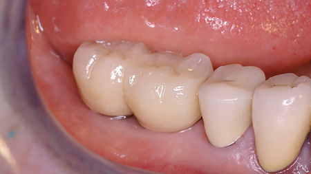 Final buccal view of the restored prosthesis with healthy keratinized tissue.