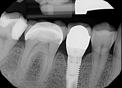Implant with normal anatomical prosthetic. Traditional oral hygiene can clean this implant. Photo courtesy of Chris Salierno, DDS, Melville, New York, USA.