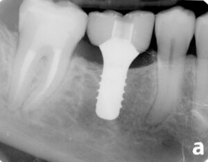 Crown is wider than the implant. The mesial and distal areas provide a space for the accumulation of bacteria. Photo courtesy of Dr. Kenneth Wong, Burlington, Ontario, Canada.