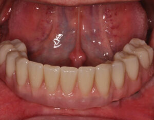 Implant retained denture. Access to the implants and underside of the denture is near impossible for patients to clean at home. Photo courtesy of Chris Salierno, DDS, Melville, New York, USA.