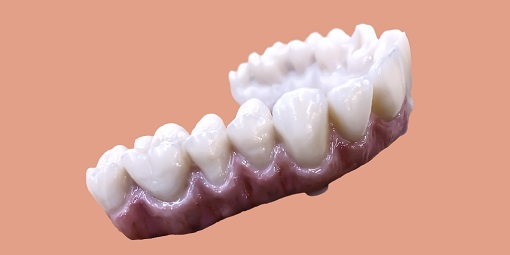 NobelProcera® next generation Zirconia implant bridge, from 2-14 units in various design options, including full contour. © Courtesy of Nobel Biocare
