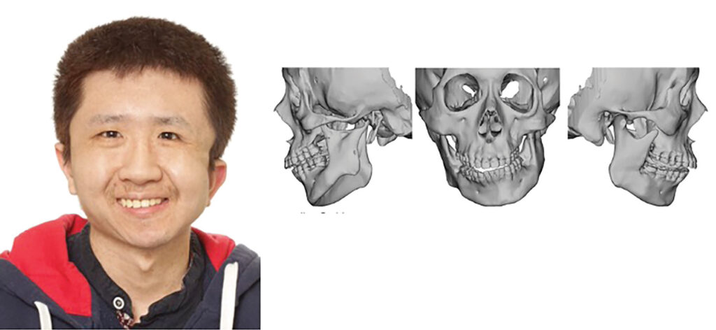 Preoperative frontal photo and 3D reconstructed CT scan of patient, showing facial asymmetry due hemifacial microsomia