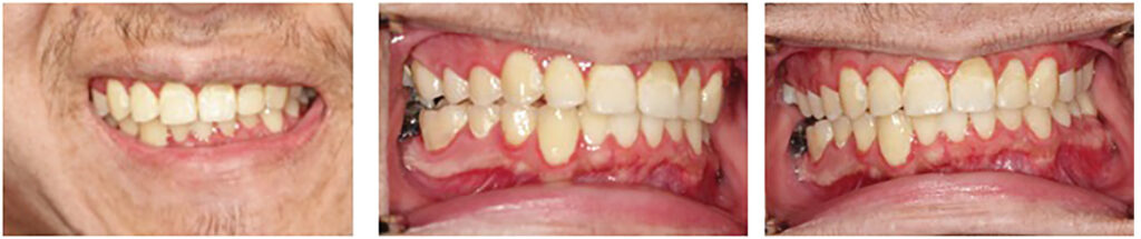 Preoperative occlusal photo showing maxillary cant, mandibular deviation and posterior open bite.