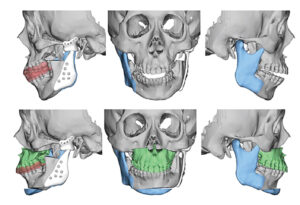 Virtual surgical planning. Notice left extended total temporomandibular joint replacement, mandibular and maxillary osteotomies and clear aligner splint.