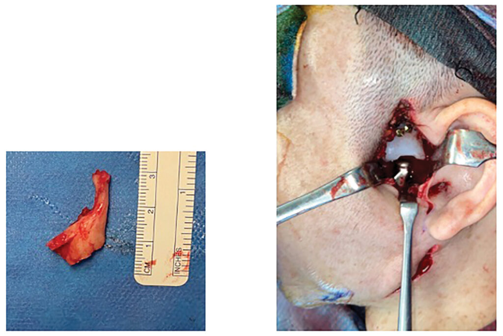Intraoperative photo with resected diminutive condyle and demonstration of the preauricular and submandibular approach. Total extended temporomandibular joint in place