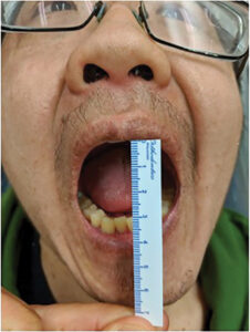 Postoperative photo. Notice acceptable maximal interincisal opening and joint function.