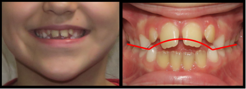 Comparison of smile esthetics and harmony before and after open bite correction.