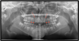 Panoramic x-ray (initial) showing mesial eruptive paths of teeth 13 and 23