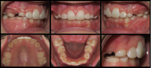 Comparison of intraoral records from before and after maxillary expansion and correction of teeth 12, 22 lingual position and molars into a Class I occlusal relationship.