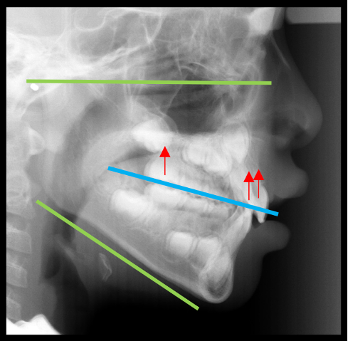 Lateral cephalogram showing a vertical growth pattern, vertical maxillary excess and overerupted upper incisors. Red arrows show the desired force system for vertical control.