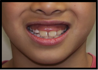 Comparison of gingival show reduction and smile esthetics before and after intrusion it in the maxilla.