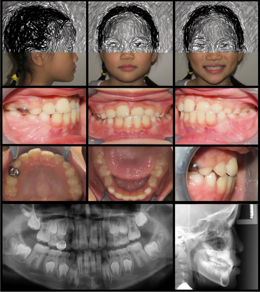Case 1: Initial records showing a negative overjet (i.e. anterior crossbite at teeth 21 and 22).