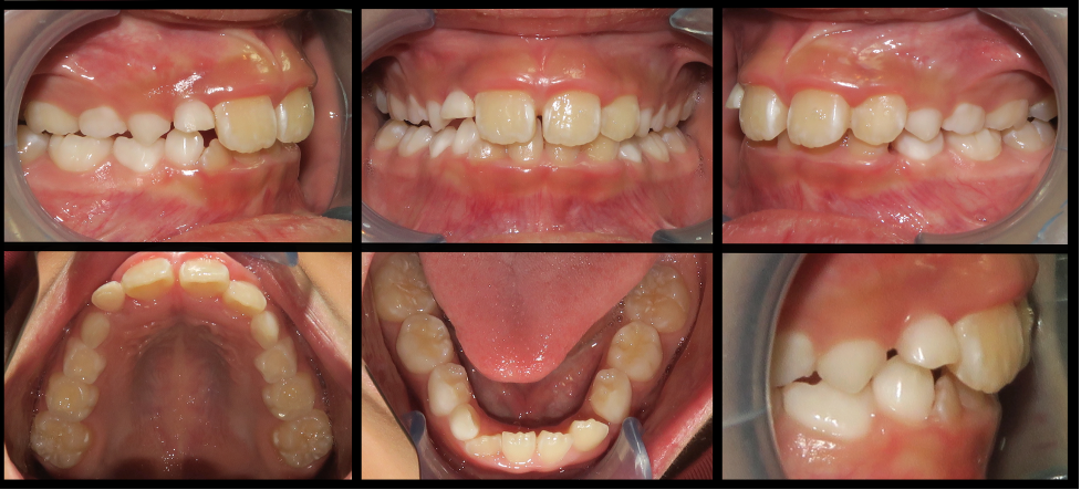 Comparison of intraoral records from before and after intrusion in the maxilla and resulting reduction of gummy smile and deep bite