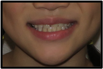 Comparison of smile esthetics before and after maxillary protraction.