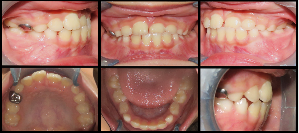 Comparison of intraoral records of before and after maxillary protraction and expansion.