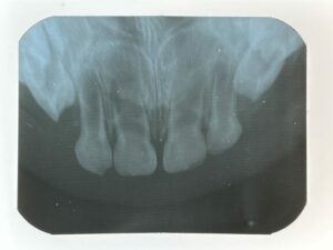 Maxillary periapical radiograph of toddler