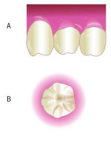 Classic dental manifestations of congenital syphilis. 4A. Hutchinson's incisors. 4B. Mulberry molar.