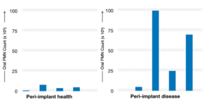 Oral inflammatory load in patients with peri-implant health and disease (Courtesy Dr. Glogauer, M).