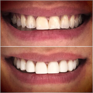 Full-arch dental bonding case to restore integrity and correct discolouration of teeth 14 to 24.