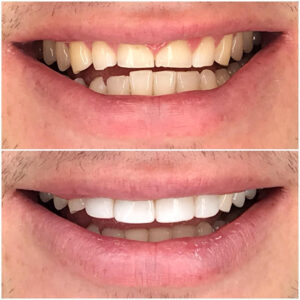 Case of severe anterior wear due to traumatic occlusive forces and parafunction corrected with dental bonding. Teeth 12 to 22 and 32 to 42 were treated by restoring the teeth to a more physiologically acceptable occlusion.